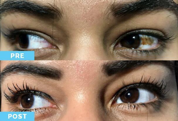 Blanqueamiento Ocular 3