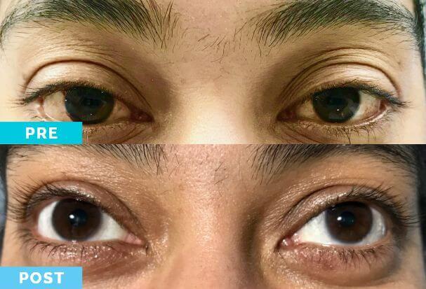 Blanqueamiento Ocular | Dr. Gabriel Oliveros