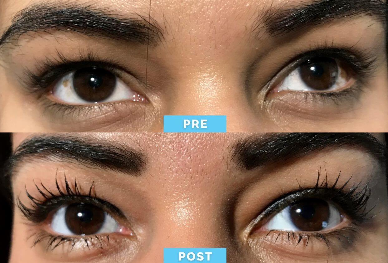 Antes y Después | Cirugía de Blanqueamiento Ocular | Dr Gabriel Oliveros
