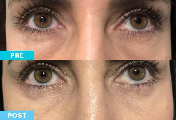 Blefaroplastia | Antes y después | Dr. Gabriel Oliveros