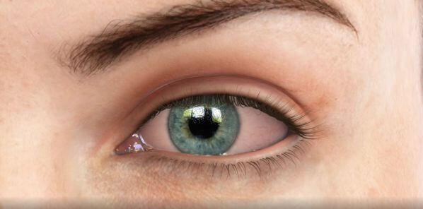 Ojos Rojos | Blanqueamiento Ocular | Dr. Gabriel Oliveros