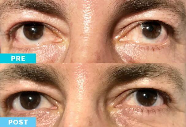 Antes y Después | Cirugía de Pterigio | Dr Gabriel Oliveros
