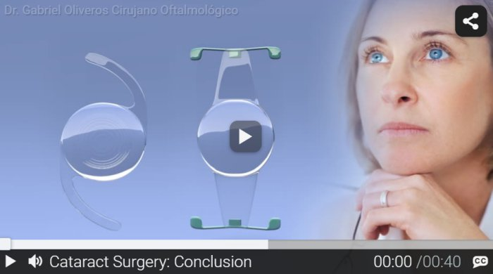 RND - Cataract Surgery - Conclusion