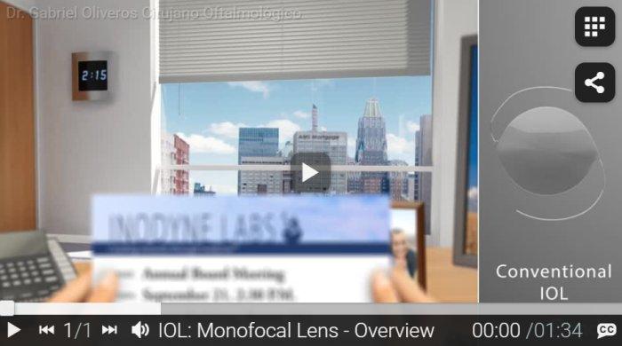 RND - IOL - Monofocal Lens - Overview