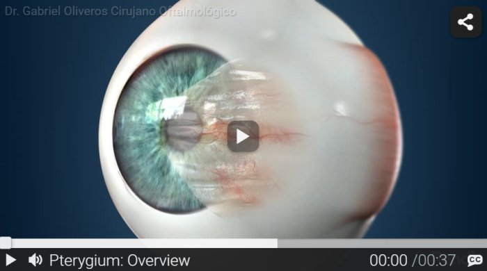 RND - Pterygium - Overview