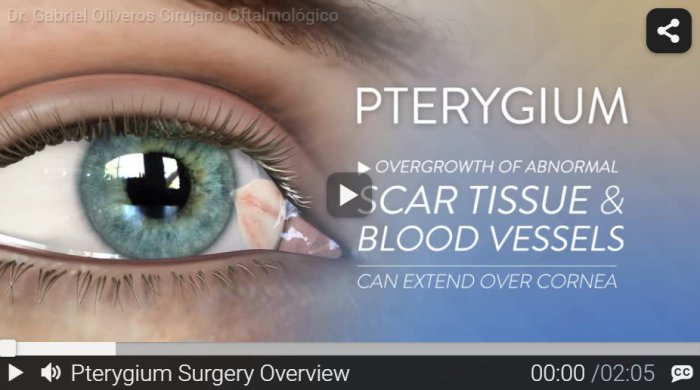 RND - Pterygium Surgery Overview